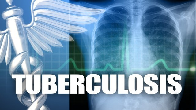 2 people test positive for TB after possible exposure at Hanks High School
